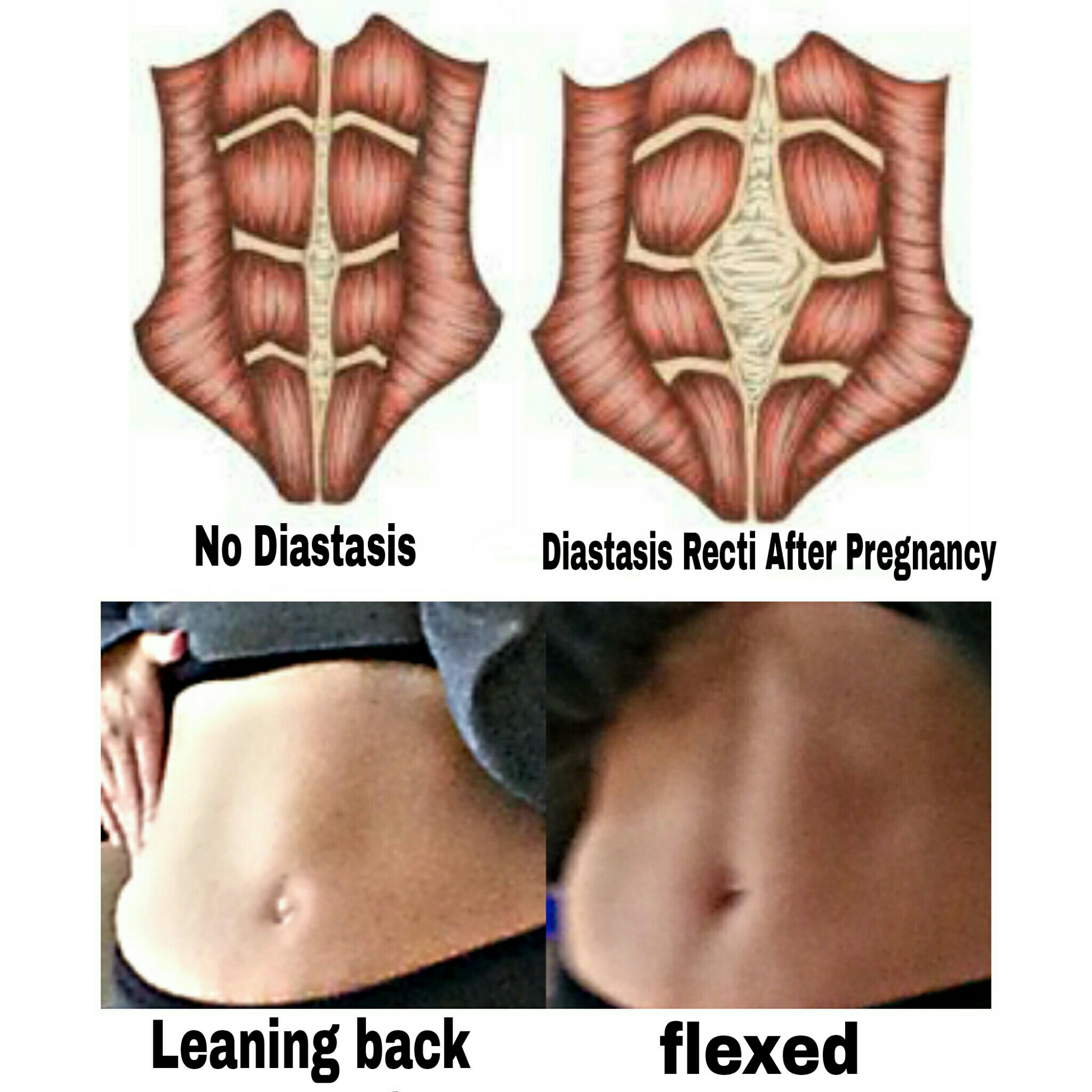 Postpartum Diastasis Recti – How it affects working out